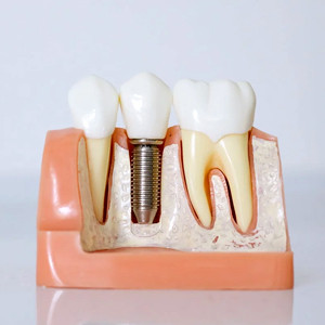 Why Hand-Pick Dental Surgeon for Dental Implants? | Cranford